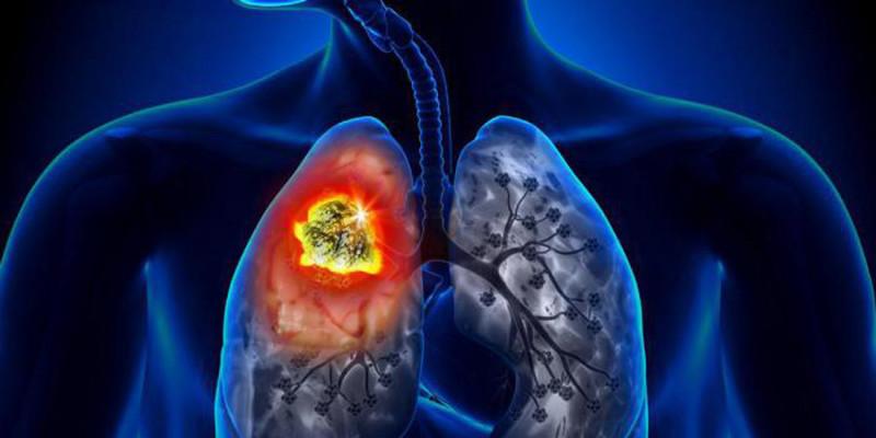 Le gaz de Radon et le cancer du poumon